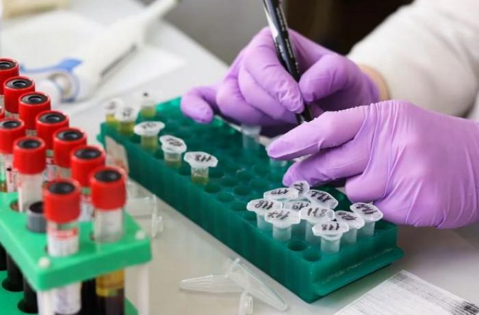 Test Covid-19, è scontro per l'assegnazione della sperimentazione a Diarosin da Regione Lombardia