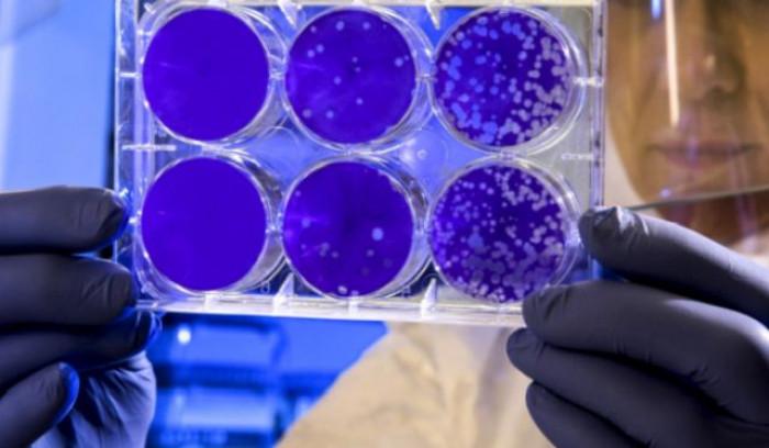 Aggiornamento dati vaccino AstraZeneca, efficacia nel prevenire sintomi ridotta al 76%