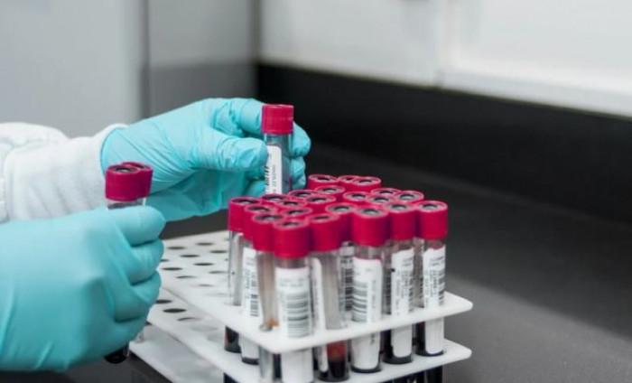 India, nuova epidemia legata all'infezione da